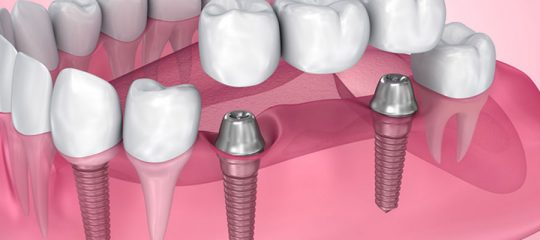 implant dentaire basal
